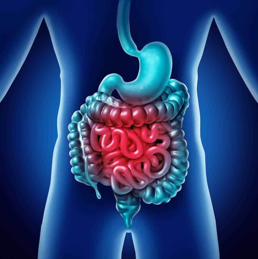 טיפול בדלקת במערכת העיכול