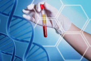 C.A.T Center | Ynet.co.il – Five important blood tests (Hebrew)
